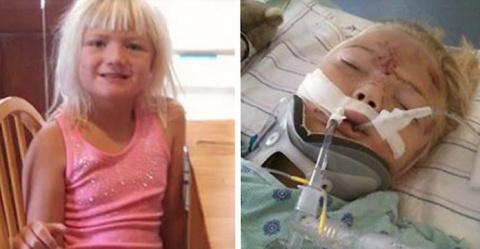 6-летняя девочка была почти разрезана пополам из-за ошибки водителя