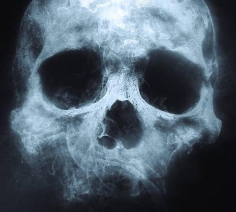 «Когда Смерть приходила ко м…