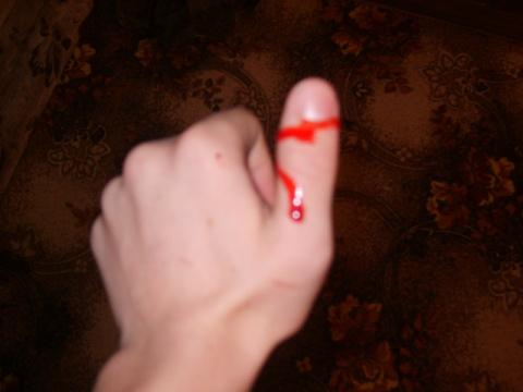 Как остановить кровотечение …