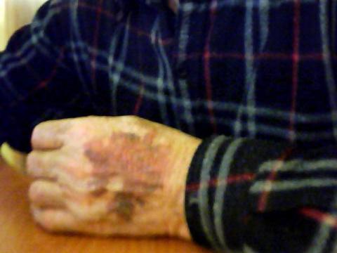 Ломкость капилляров кожи при надавливании (обо что-либо)