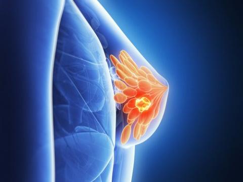 Рак груди: 7 мифов об этом заболевании