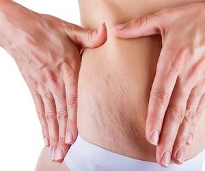 Натуральный гель для лечения растяжек, шрамов и пигментных пятен