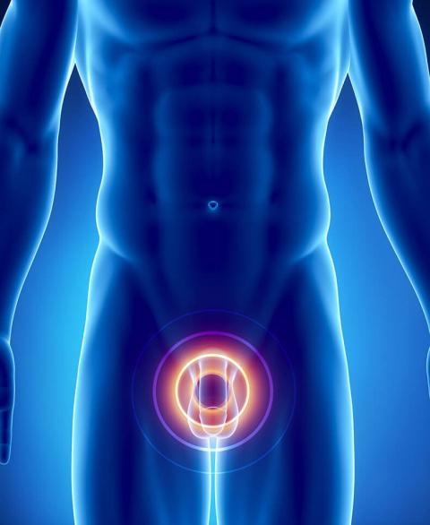 Обойдемся без простатита: комплекс упражнений для мужского здоровья