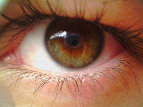 Дистрофия сетчатки глаза: си…