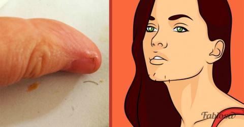 Волосы на подбородке: 6 тревожных признаков, которые ни в коем случае нельзя игнорировать