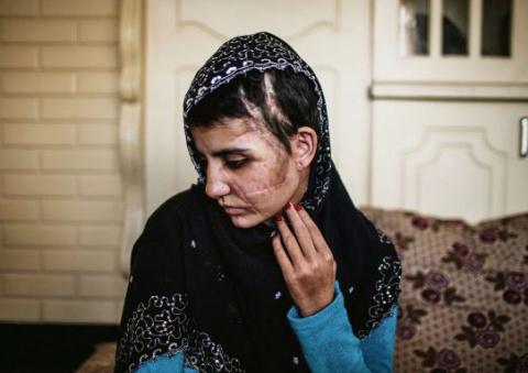Гюль Мина: выжить после 15-ти ударов топором