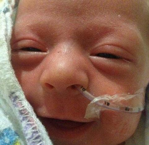 12 фото недоношенных малышей, которые счастливы просто потому, что живут