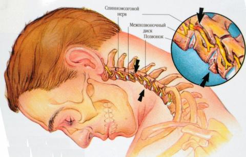 8 Упражнений от Шейного Остеохондроза