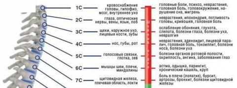 Профилактика остеохондроза ш…