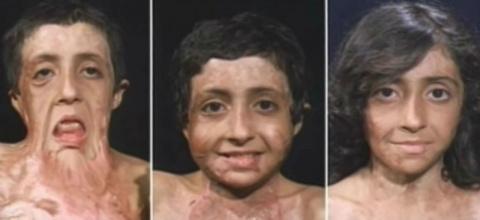 12 пластических операций вернули лицо афганской девочке