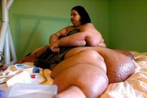 Самая тяжелая женщина в мире похудела на 403 килограмма