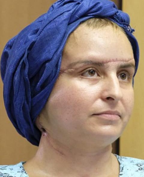 Три года спустя после трансплантации лица эта женщина выглядит потрясающе