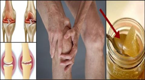 Причина боли коленного суста…