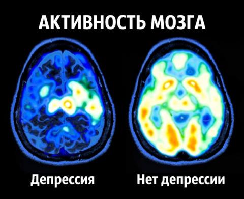 Что делает нас счастливыми - советы нейробиолога