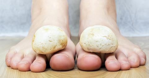 Эффективное народное средство для лечения грибка