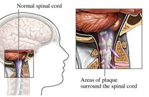 Современное лечение рассеянного склероза