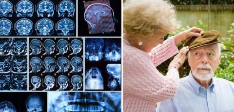 8 упражнений «Анти-Альцгейме…