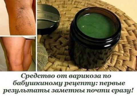 Бабушкин рецепт от варикоза:…