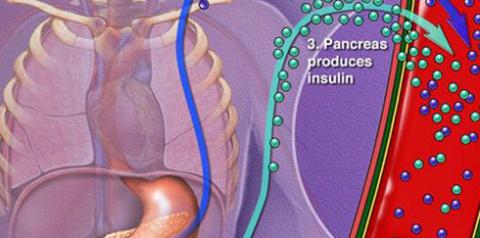 14 сигналов о том, что уровень сахара в крови очень высок