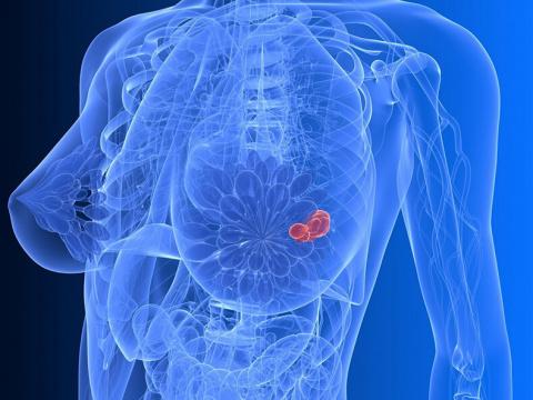 Маммография — обратная сторона медали