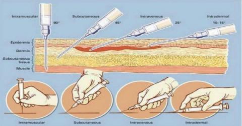 Как правильно делать инъекци…
