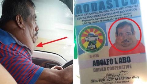 Водитель такси, 15 лет проживший с огромной опухолью на шее, был прооперирован благодаря случайному пассажиру