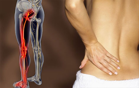 Способы лечения защемления седалищного нерва